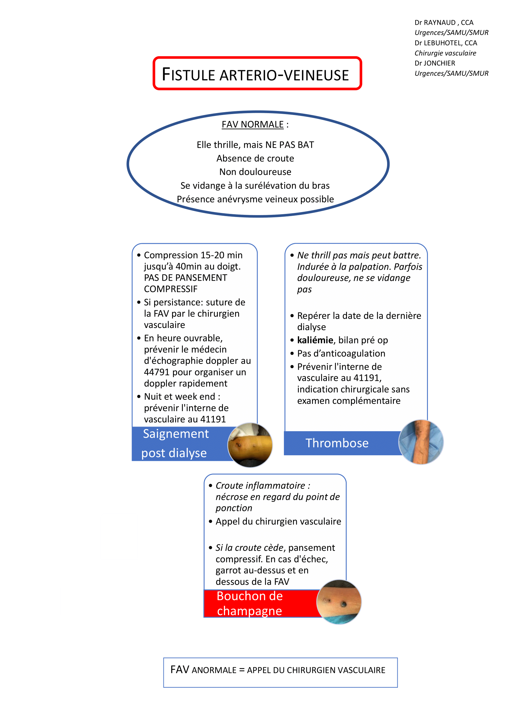 protocole fistule (2)-1